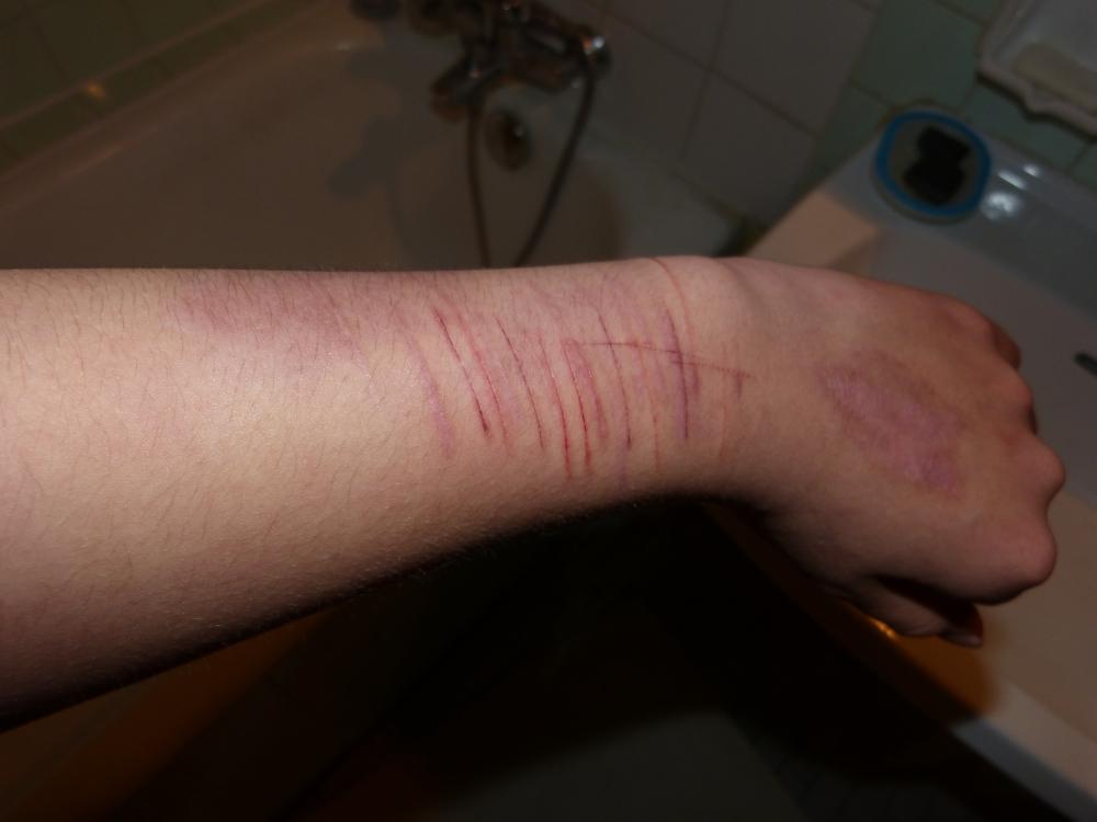 auto-mutilation
